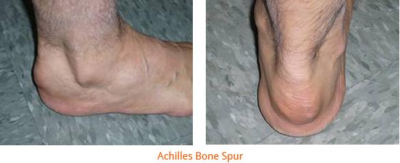 Achilles Bone Spur Surgery | Achilles